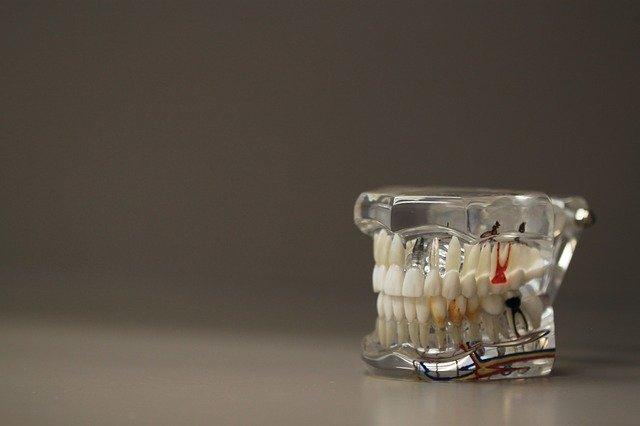 model zubů