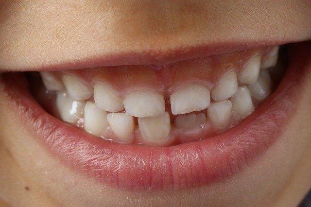 dětské zuby